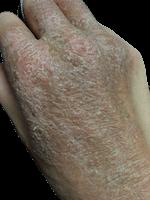 ゴワゴワの皮膚